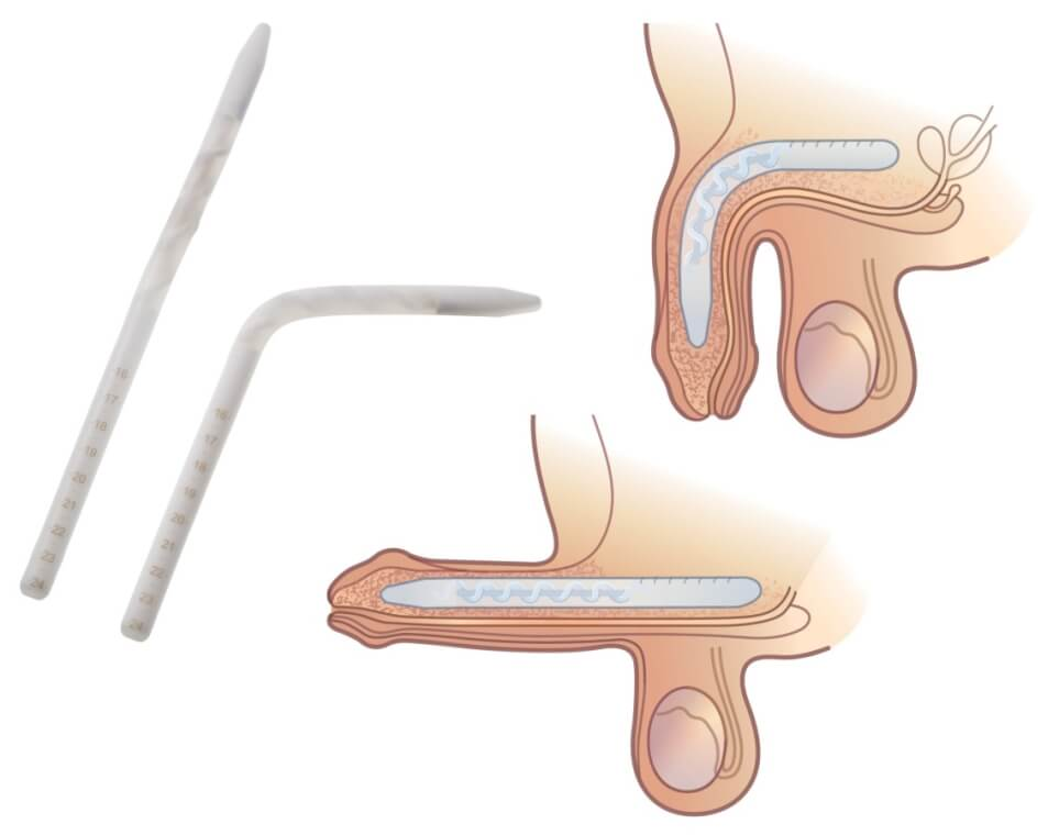 semi rigid malleable penile implant