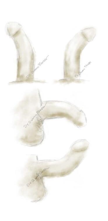 Moderate-penile-curvature