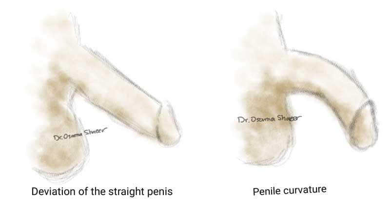 Congratulate, what Why are some penis curved think