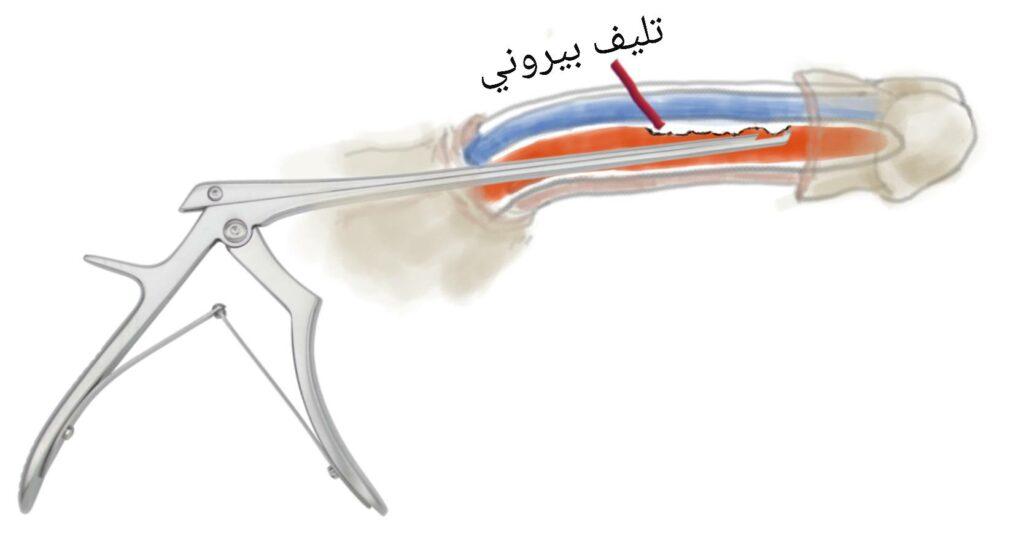 تقنية شعير لإزالة نسيج بيروني تسمح باستئصال مرض بيروني من داخل الجسم الكهفي دون نقص الطول أو الرقعة أو انخفاض الحساسية