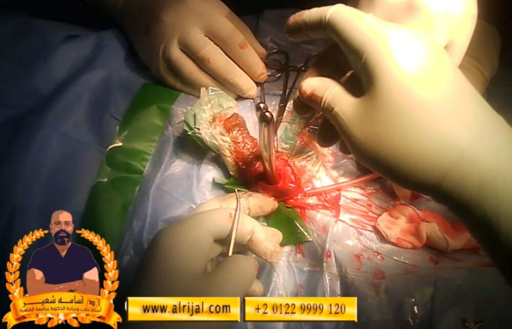 خطوات جراحة دعامة العضو الذكرى 12 تم توسعة مكان لدعتمة العضو الذكري أسفل القضيب علي الجهتين