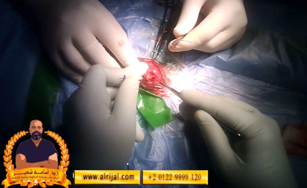 خطوات جراحة دعامة العضو الذكرى 5 فتح غلاف الجسم الكهفي