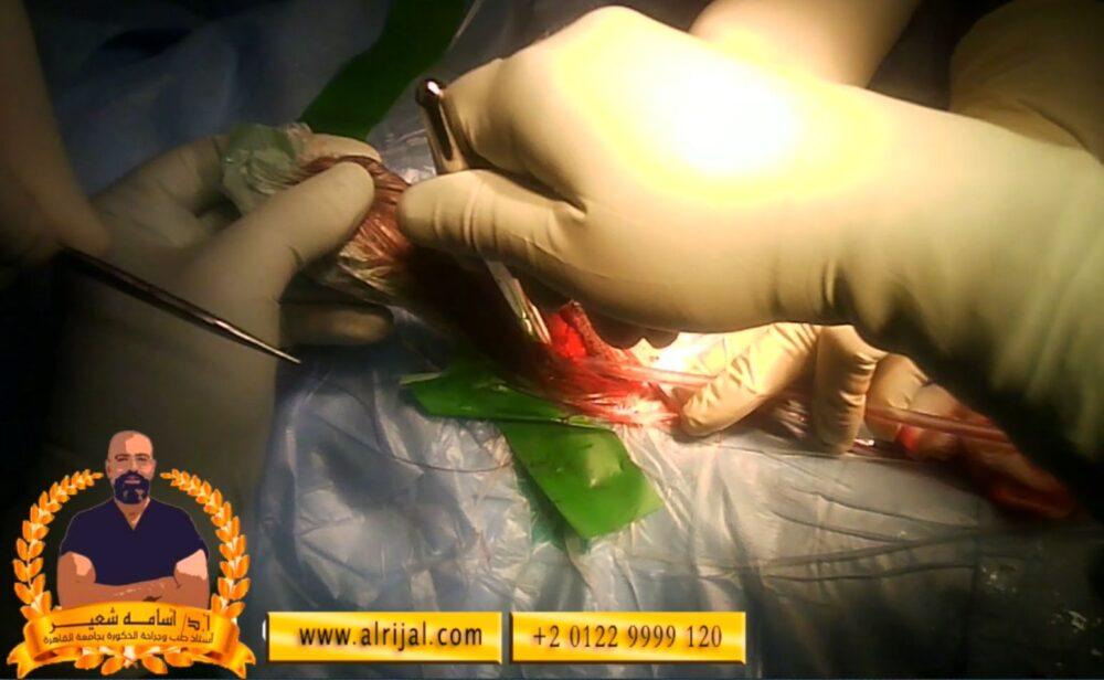خطوات جراحة دعامة العضو الذكرى 7 توسعة الجسم الكهفي لأسفل لزرع دعامة القضيب