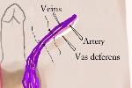 vein ligation at varicocelectomy